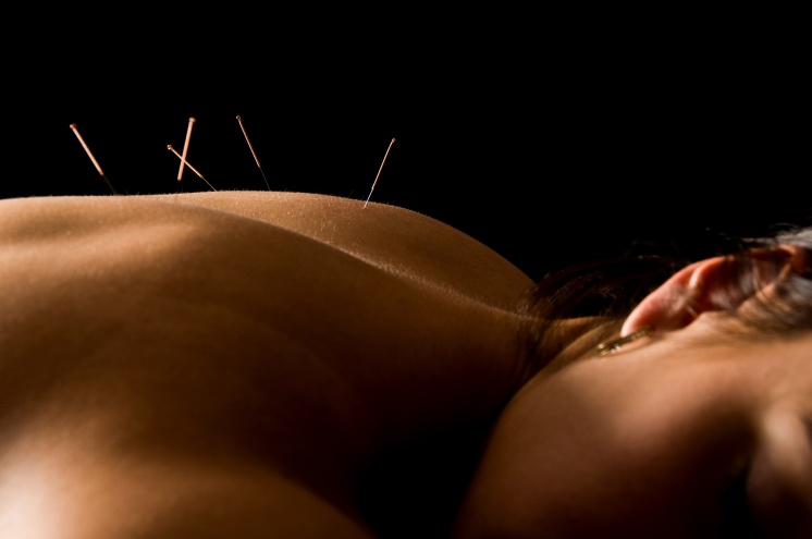 Woman getting an acupuncture treatment in a spa